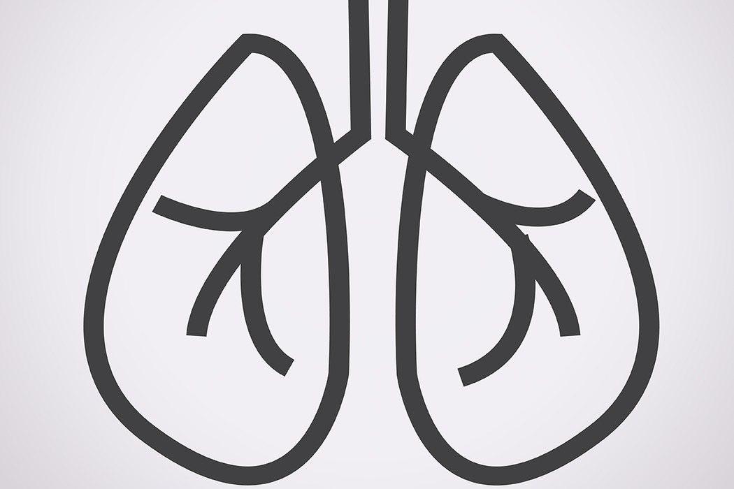 肺癌已成國病,據統計,台灣每年肺癌新發病例約有1萬3000多名,平均每40分鐘就...