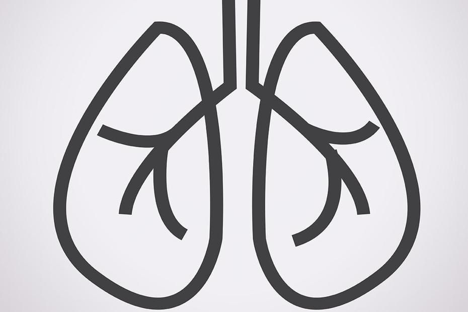 肺癌已成國病,據統計,台灣平均每40分鐘就有一人罹患,近萬人死於肺癌。 圖/ingimage