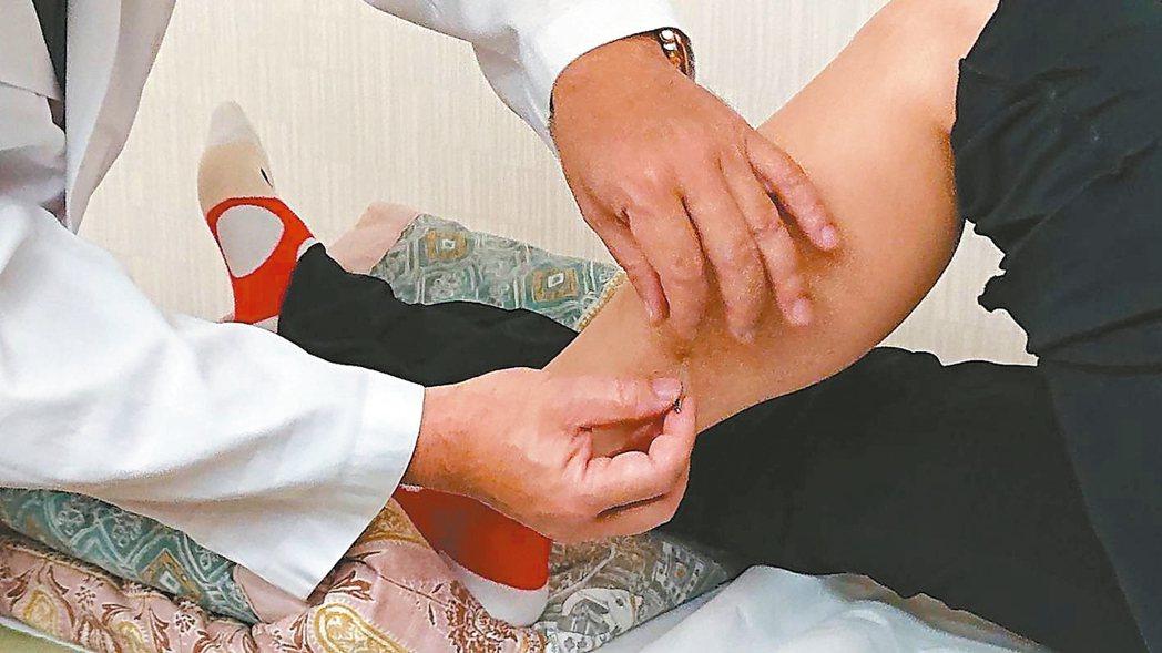 乾針治療的原理是刺激末梢神經,或緩解受刺激的末梢自律神經以中斷腦部自律神經的不良...