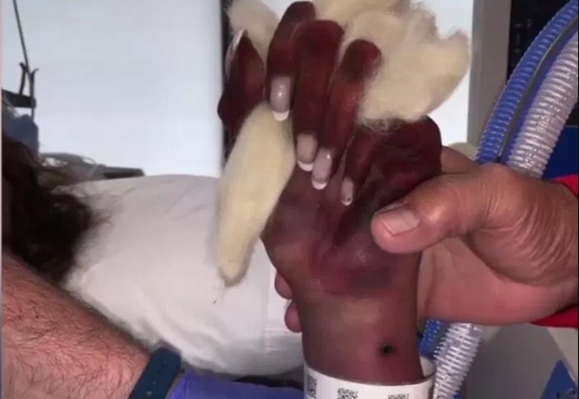 瑪麗的手遭細菌侵入壞死,因而需要截肢。圖擷自The Sun