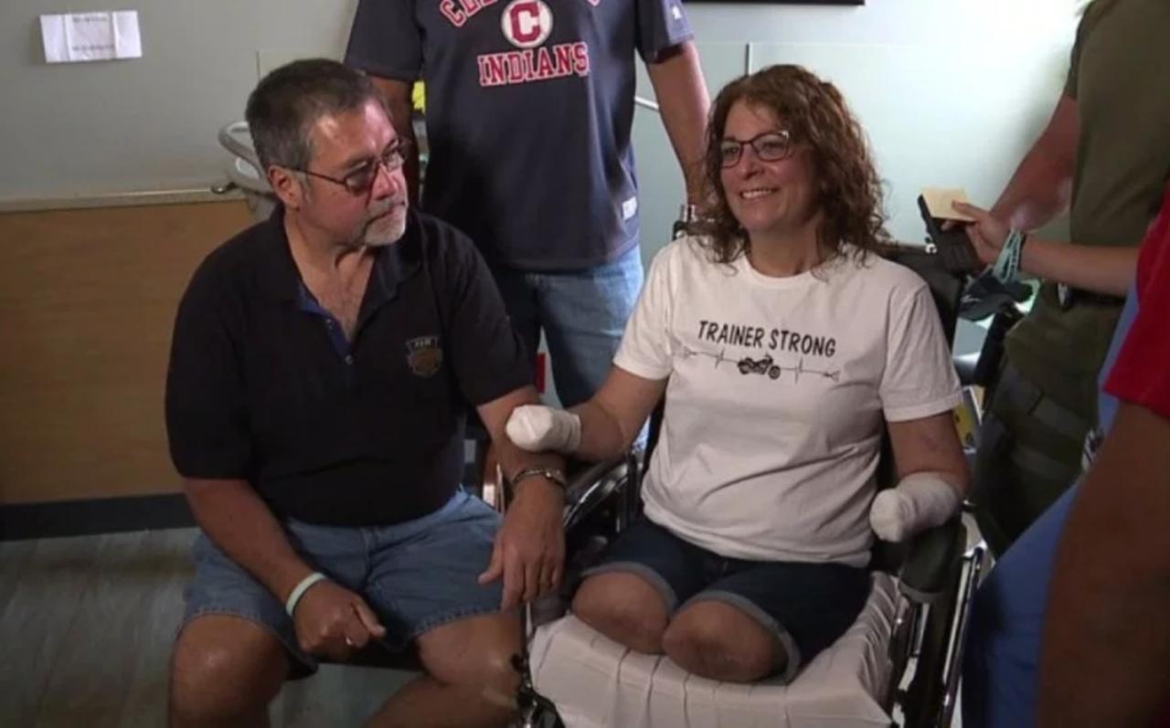 美國女子瑪麗因手臂刮傷遭愛犬舔舐,導致她昏迷10天,醒來後已遭醫生截去四肢。圖擷...