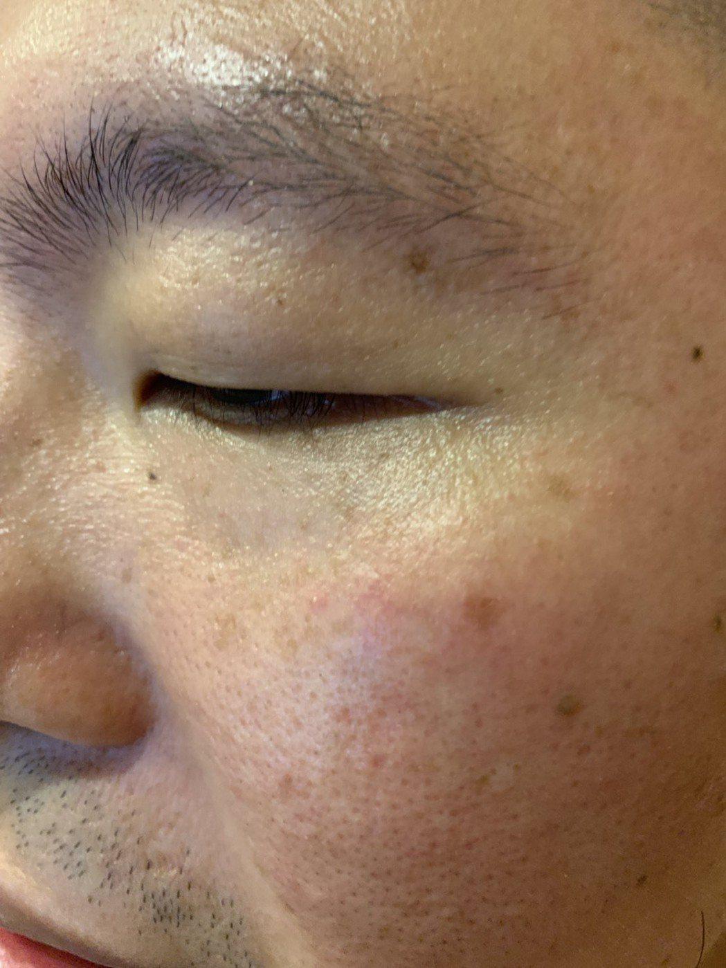 若有輕微的眼袋,建議避免熬夜,要有充足睡眠才能延緩眼袋生成。記者陳雨鑫/攝影