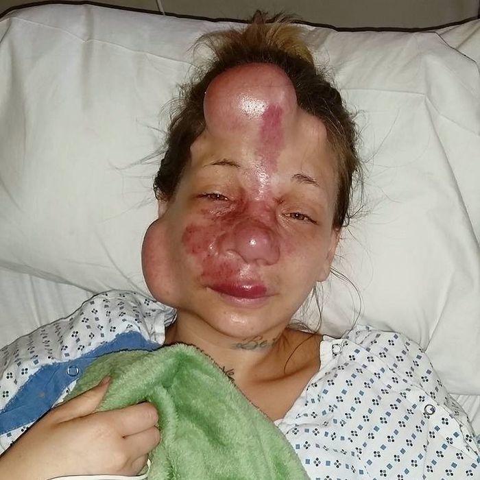 美國一名少女罹患了腦動脈血管畸形,臉上就有大面積粉紅色斑紋,有時候臉部還會出現像...