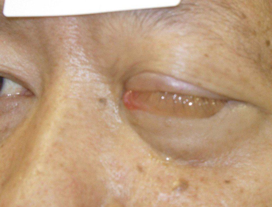 正值壯年的男子左側鼻孔出現異狀,後來惡性腫瘤大到連眼睛都睜不開。記者徐白櫻/翻攝