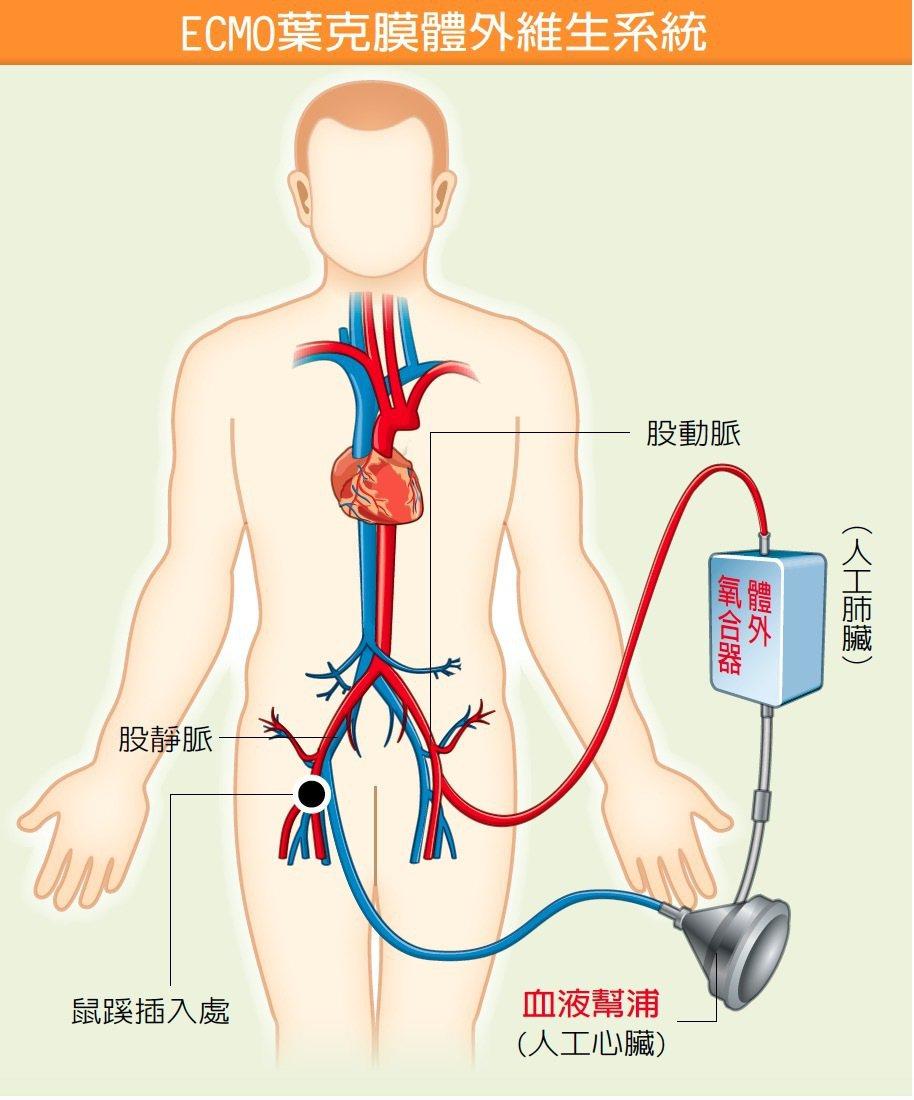 葉克膜是血液幫浦及體外氧合器的組合,導管可由鼠膝部或頸部、腋下等部位插入,連接血...