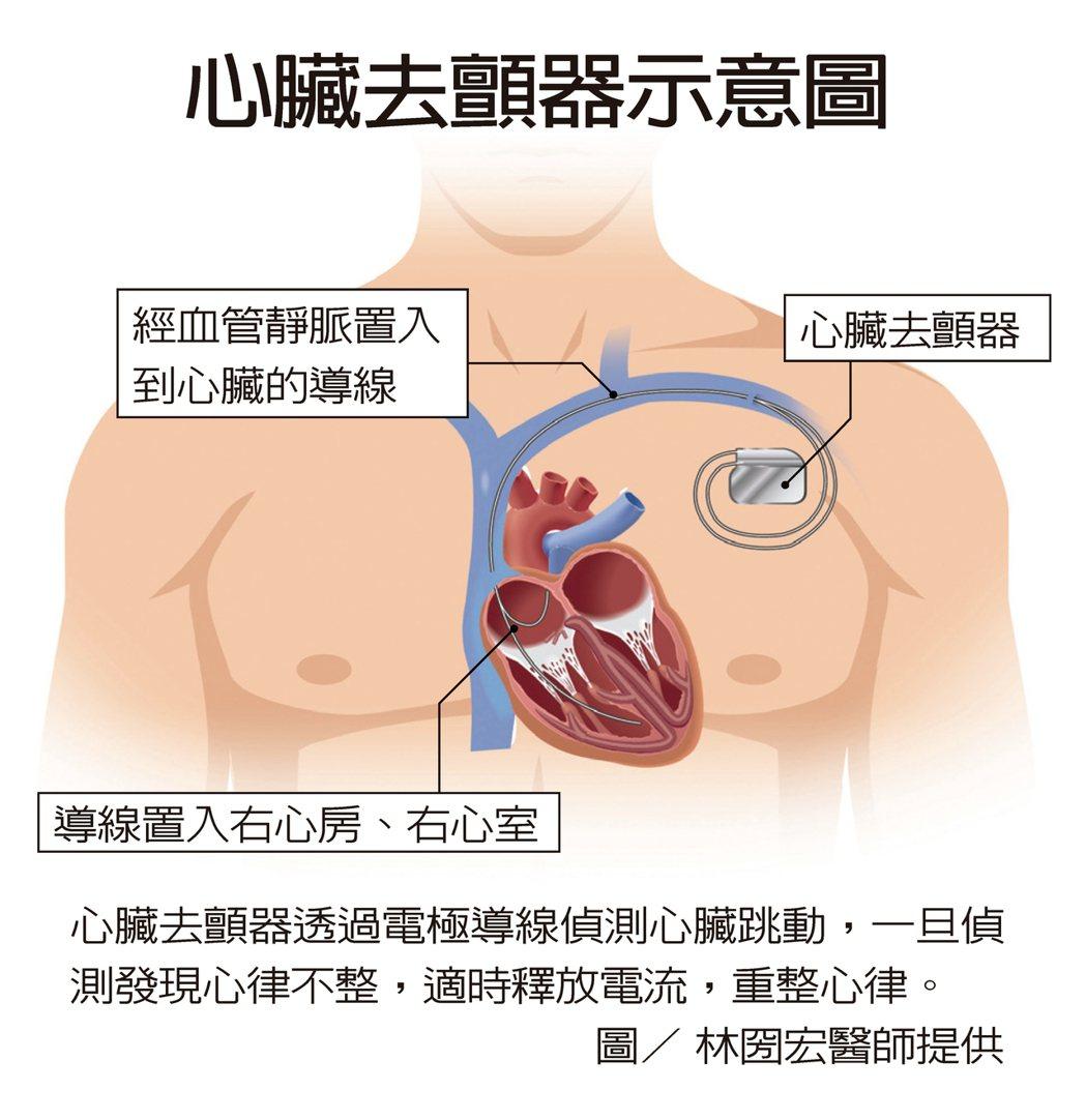 心臟去顫器透過電極導線偵測心臟跳動,一旦偵測發現心律不整,適時釋放電流,重整心律...