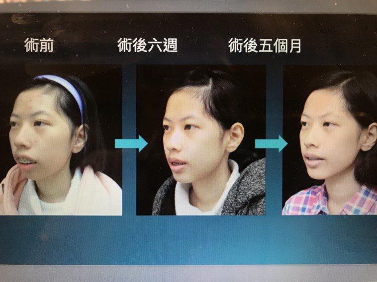 王同學在醫師建議下接受顳顎關節治療,咬合、睡眠中止等問題改善,外觀也更美有自信。...