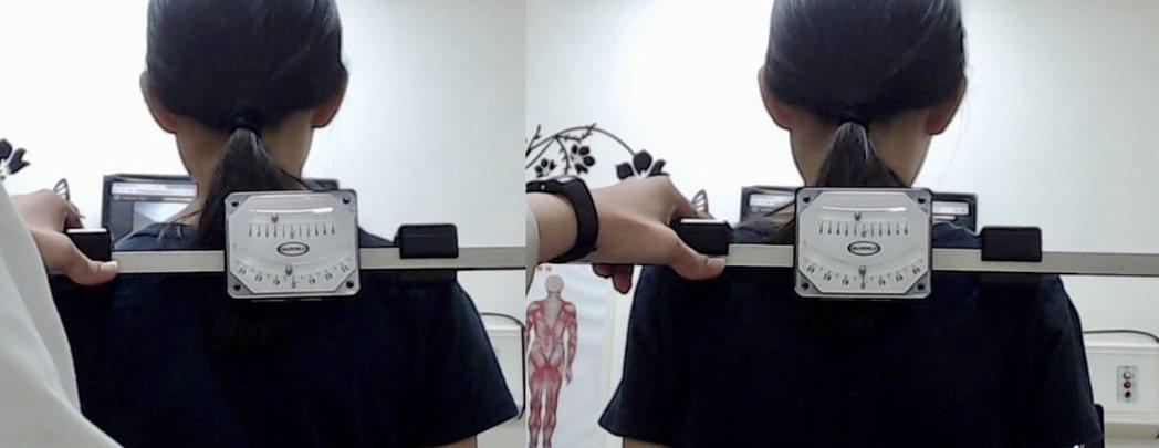小五生接受KKT聲波動力平衡系統治療前(左)與治療後(右),短短一個月,矯正肩部...