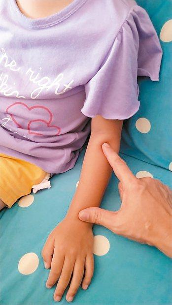 既然吃不下藥,想起平時為了緩解症狀學得幾招小兒按摩,趕緊在女兒小臂前側,從手腕往...
