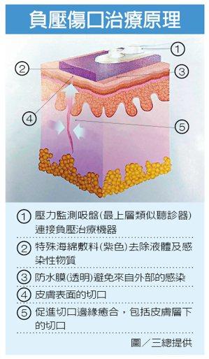 負壓傷口治療原理 圖/三總提供