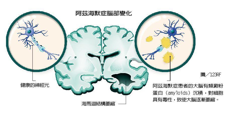 阿茲海默症的腦部變化。