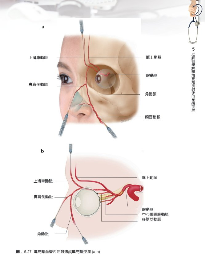 該書內容指導醫師詳細瞭解肌肉、血管、神經與組織的構造後,可以避開血管栓塞、神經損...