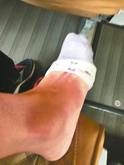 因搶拍美景,不慎踩空台階,腳踝扭傷。 圖/小魚媽媽提供