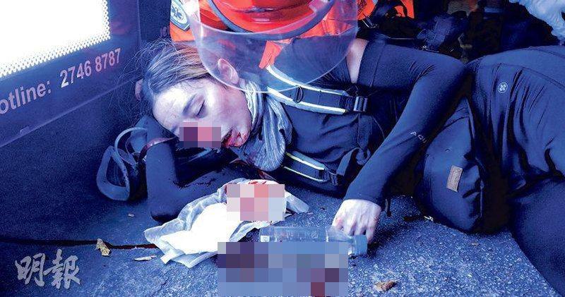反送中少女右眼球中彈破裂。取自香港明報