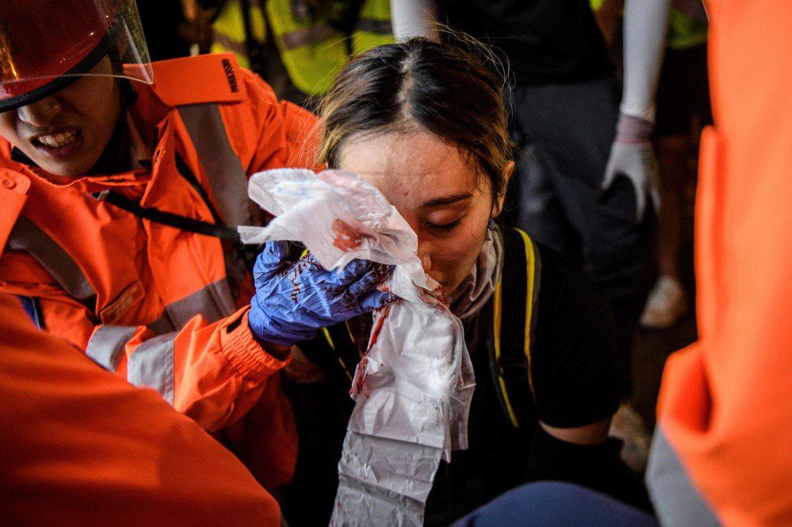 儘管該名傷者在有意識的狀況被攙扶送醫,但右眼眼球卻已被打碎,面部顴骨亦嚴重骨折,...