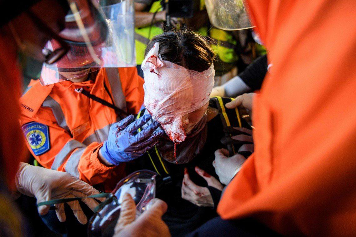 該名受傷示威者,極可能因此失明。 圖/法新社