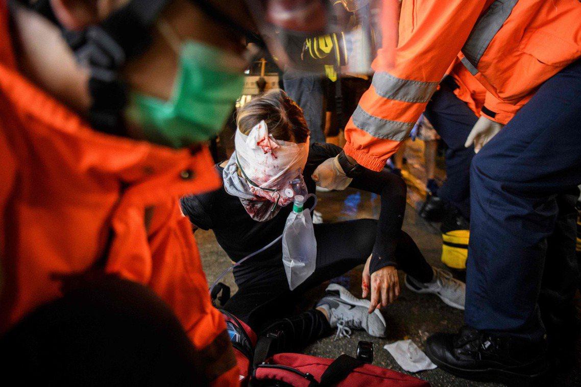 該名受傷示威者,在救護隊的攙扶下送醫。 圖/法新社
