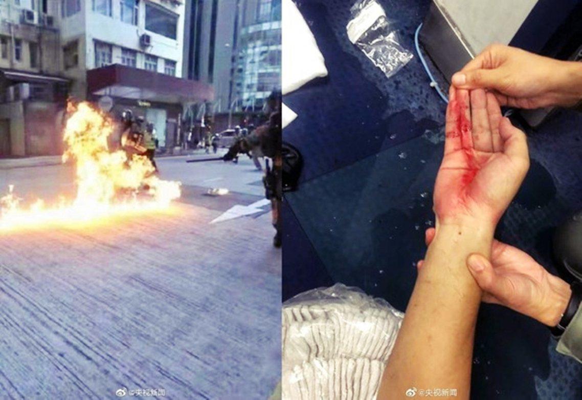 反送中衝突中,被汽油彈燒傷的香港警察。 圖/《央視》新聞