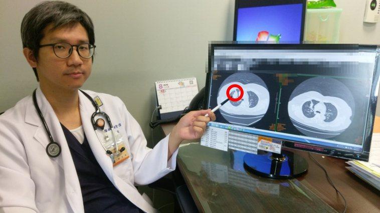 長安醫院胸腔內科醫師姚智偉指出,肺腺癌有可能轉移至骨頭、腦部和肝臟,尤其以骨頭轉...