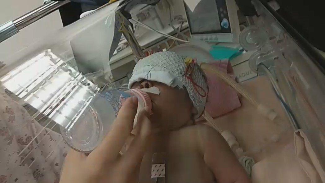 小布丁置入氣管内管及兩側鼻管方式治療後,現在已可正常喝奶。 圖/門諾醫院提供