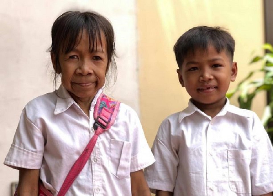 年僅10歲的拉克辛跟她11歲的哥哥個頭差不多高,但因為臉上布滿皺紋,因此看起來就...