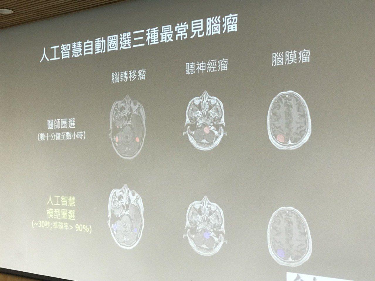 台大腫瘤醫學部主治醫師許峯銘表示,該技術目前已可應用於腦轉移瘤、腦膜瘤以及聽神經...