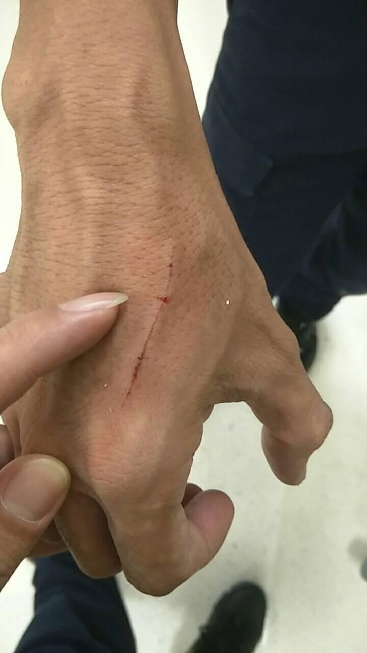 警員顏長弘手上擦挫傷。記者林伯驊/翻攝