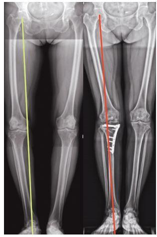術前(左)右肢承重軸線已偏離,形成O型腿。術後(右)獲得矯正。圖/王稚暉醫師...