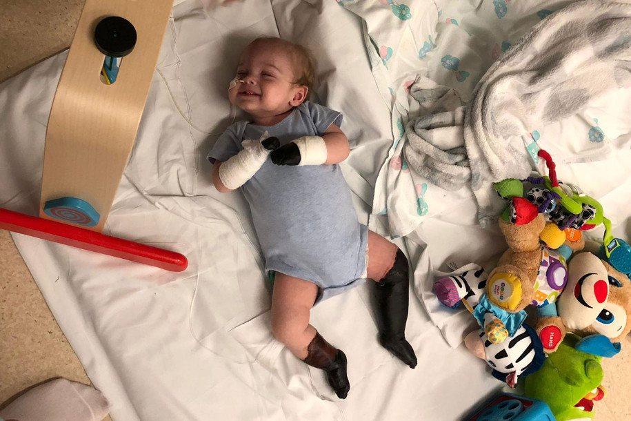 英國一名11個月大的男嬰,因喉嚨感染引發敗血症,導致四肢發黑壞死要截肢。圖擷自N...
