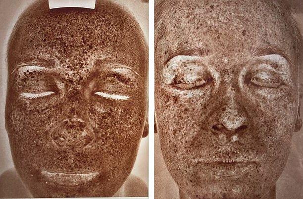 碧安卡做皮膚檢測,左圖為原本的膚質,色素沉澱嚴重;右圖則為治療一個月後的狀況,膚...