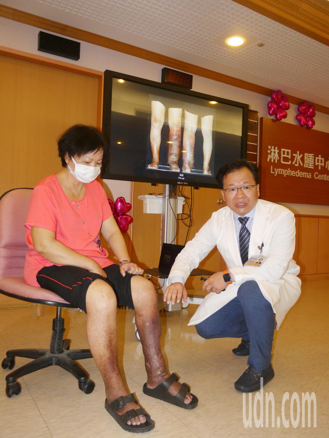 吳姓病友在婦科手術後出現淋巴水腫,目前已經追蹤3年,圖後方照片是開刀前的情況。記...