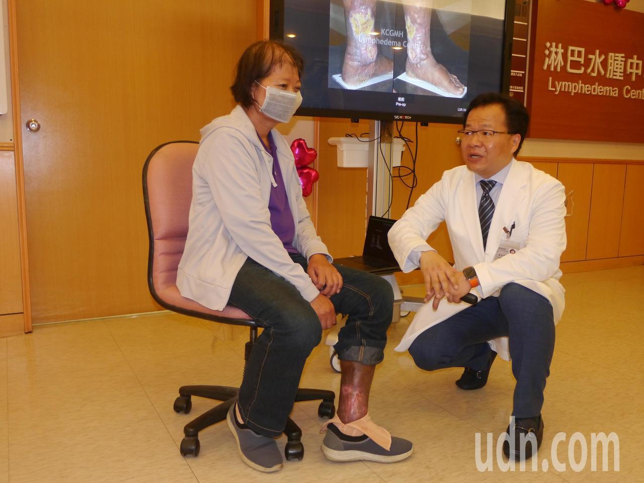梁姓病友的左小腿在5年前出現淋巴水腫,今年2月接受手術。記者徐白櫻/攝影