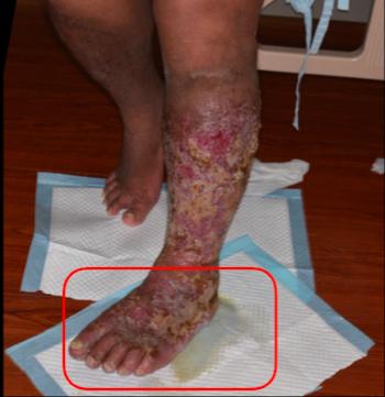 59歲的王姓男子,因為淋巴水腫導致淋巴外溢,只要走路經過,地上就會有一灘水。圖/...