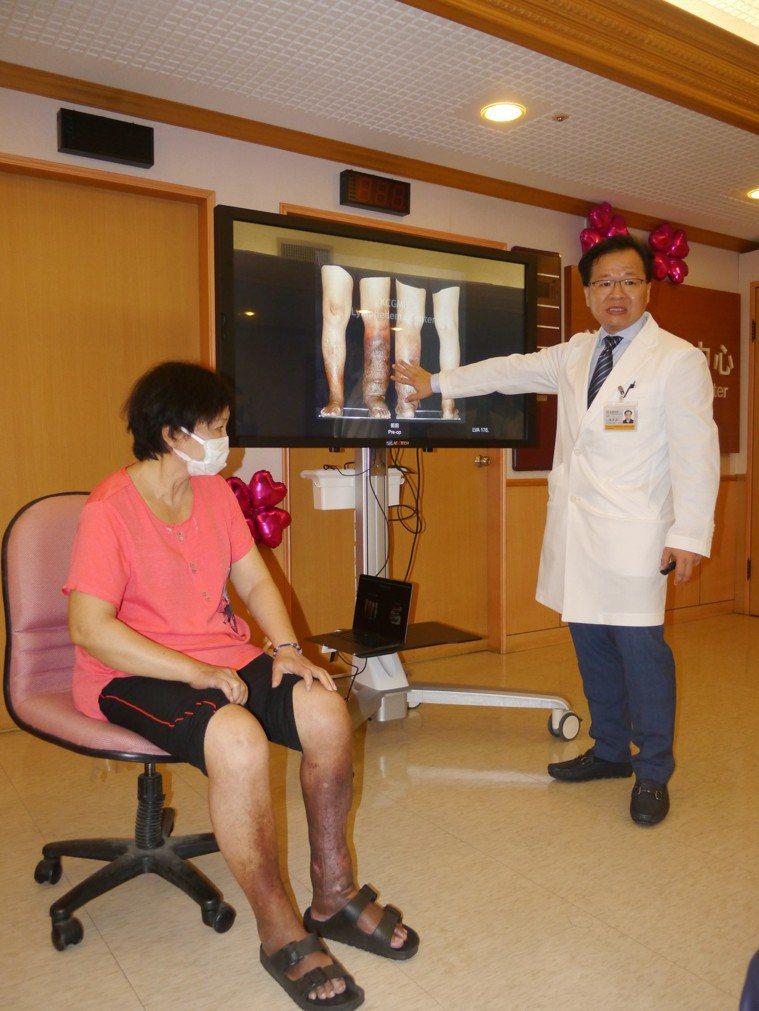 女病友今年2月接受治療,術後恢復良好,昨出席「淋巴水腫中心」揭牌儀式,主任楊家森...