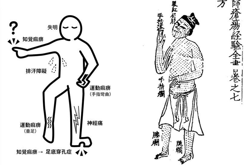 左圖:〈漢生病的另一面〉記載的漢生病的病症。右圖:《重校宋竇太師瘡瘍經驗全書》卷七中記載的大麻風毒症狀。 圖/作者提供;來源/日本厚生勞働省編;北京大學圖書館藏