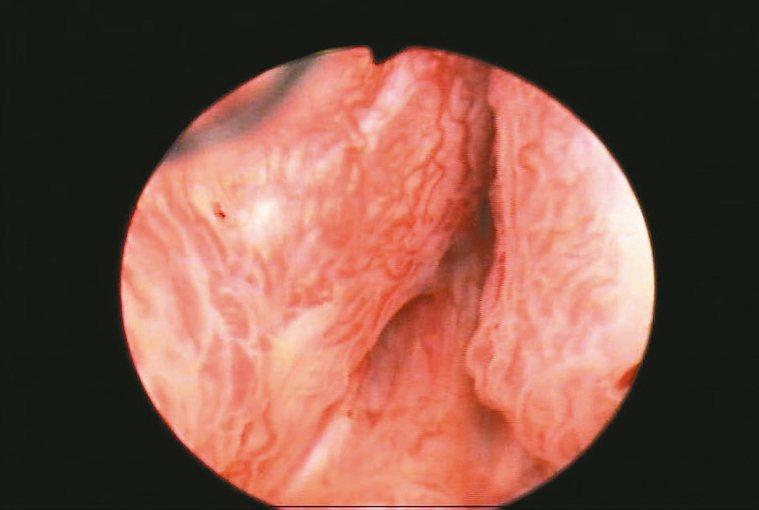 雷射攝護腺剜除術圖1以內視鏡由尿道進行手術,可見腫脹攝護腺完全阻塞膀胱出口,...