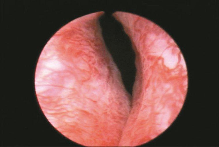 雷射攝護腺剜除術圖2在膀胱頸的部位,勉強可以看到一個小縫隙。
