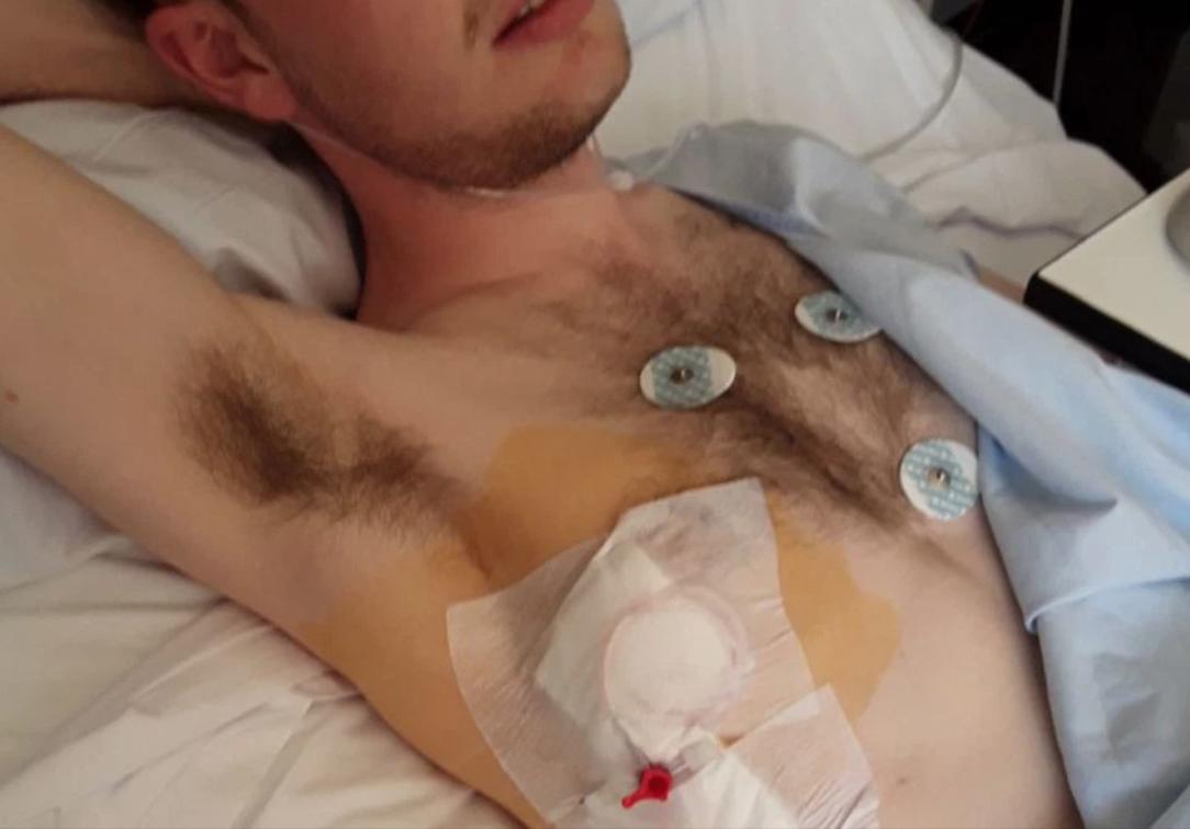 一名英國男子搭乘時速125英里(約201公里)的過山車後,卻不斷咳出血來,送醫後...