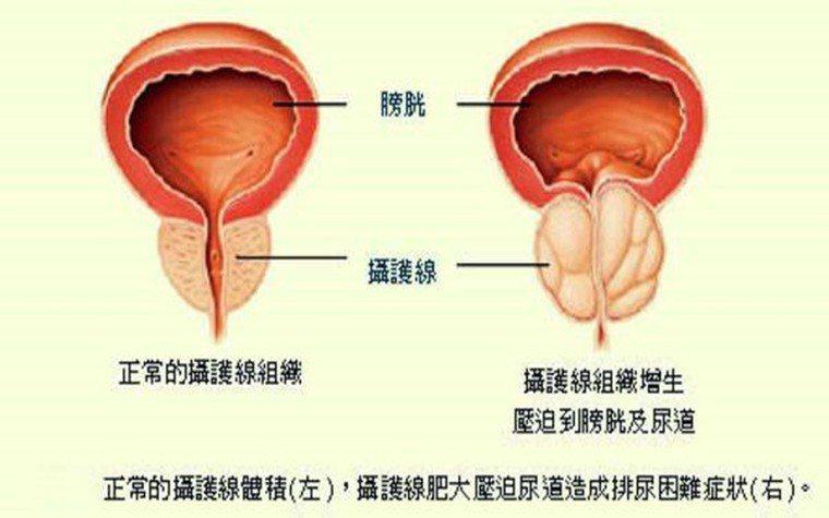 攝護腺肥大是中老年男性經常會遇到的問題。圖/安南醫院提供