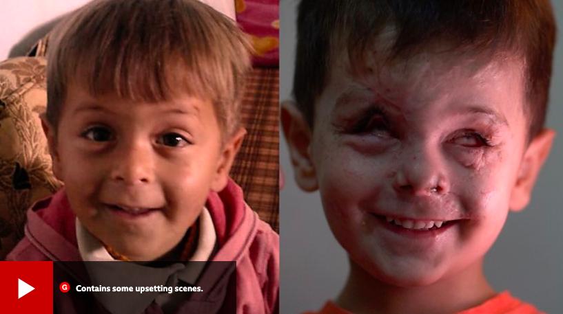 敘利亞四歲小男孩Jouma一年前受到敘利亞戰火波及,兩眼完全失明。截自BBC