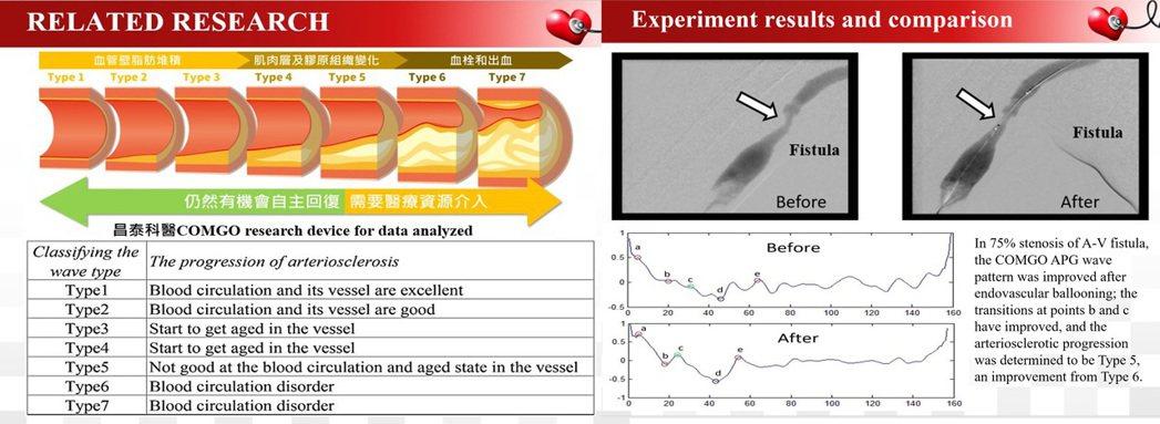 昌泰科醫COMGO心血管趨勢健康儀能有效量測出血管阻塞程度,可運用在心血管預防醫...