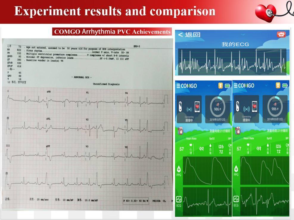 昌泰科醫COMGO心血管趨勢健康儀擁有單導層心電圖與血氧波形訊號能同時偵測比對心...