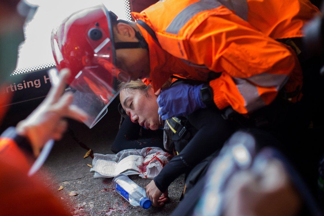 近期最被流傳散布的假新聞,則是香港黑衣少女右眼被警察布袋彈打碎的事件,在輿論憤怒...