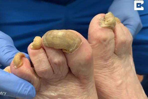 女一年沒剪腳指甲 竟長出長達4公分超厚「小腳趾帽」