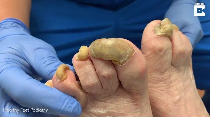 美國一名女子,長達一年都沒有修剪過自己的腳趾甲,不僅讓腳趾甲變厚變黃,甚至還遭到...