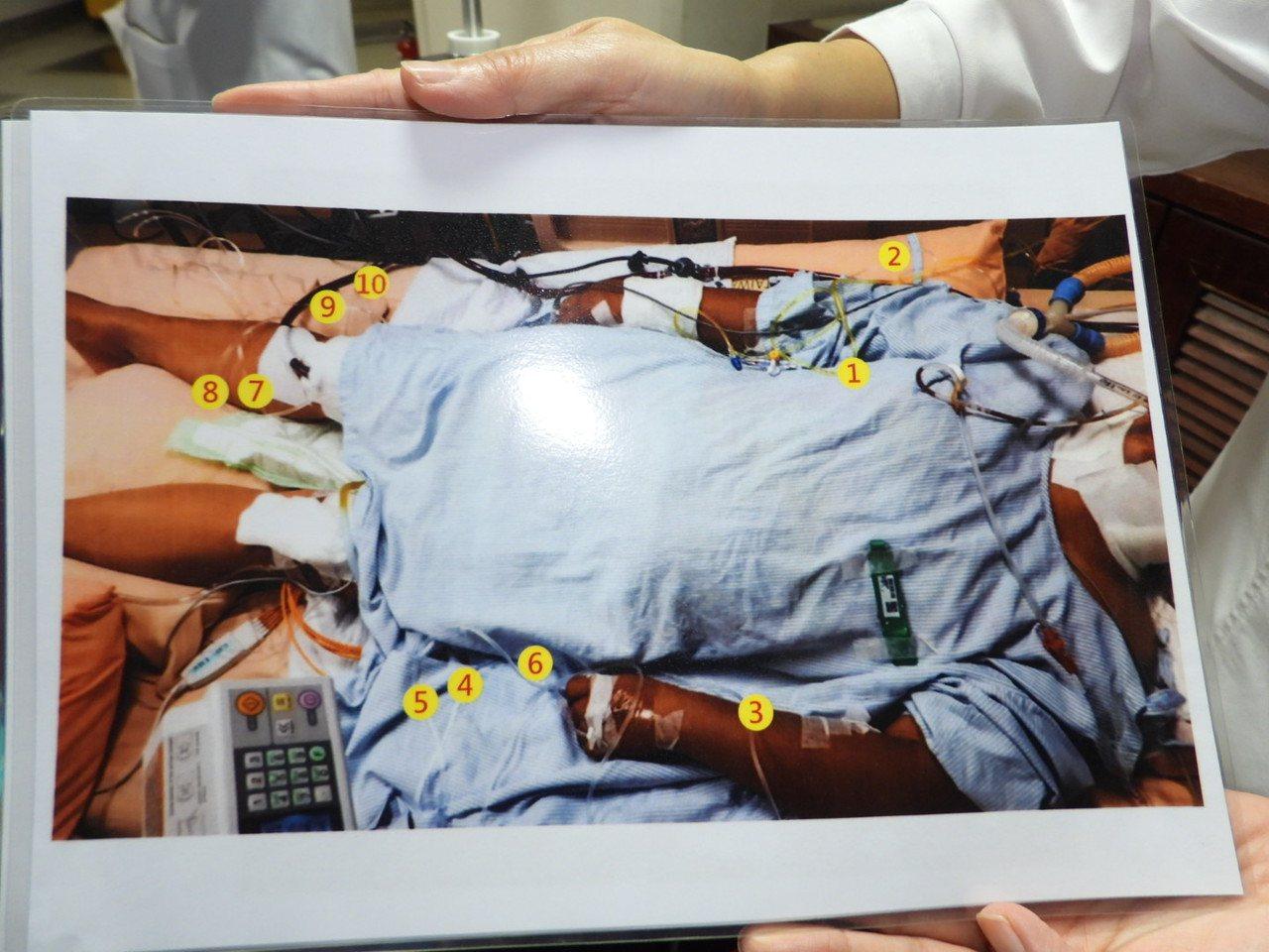 急救病患身上往往需要裝上十多種管線,忙中有錯風險不低。記者周宗禎/攝影