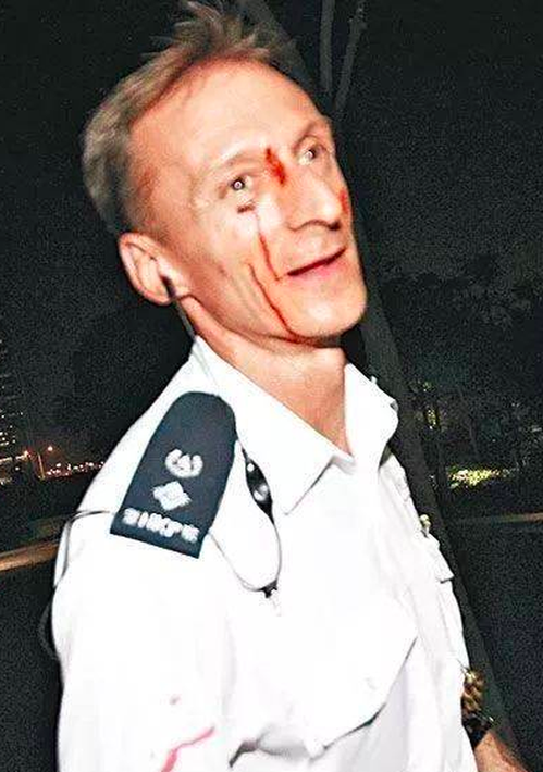 2014年英籍警官莊定賢處理「占中」行動,在衝突現場頭部遇襲受傷,血流滿面,獲稱...