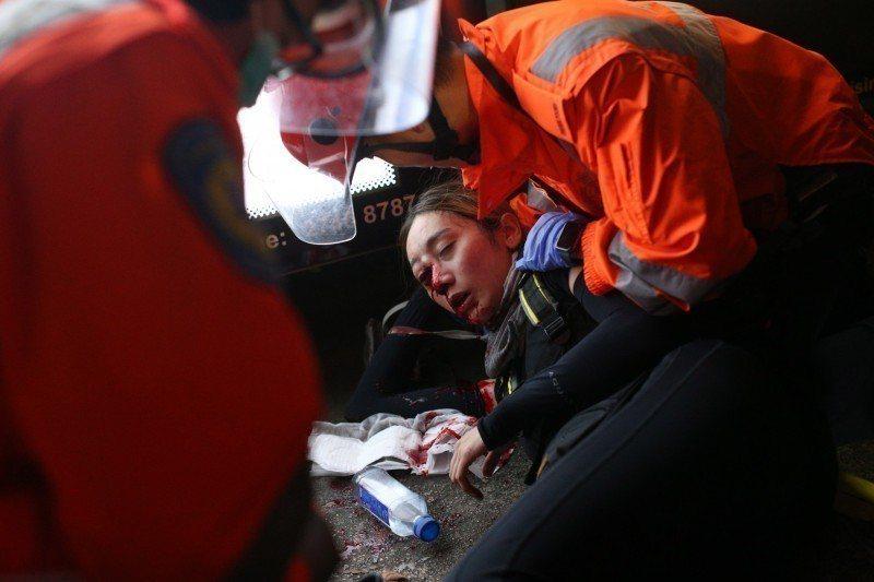 香港尖沙咀警署外少女被擊爆眼球事件,激起許多香港人悲憤心情。歐新社