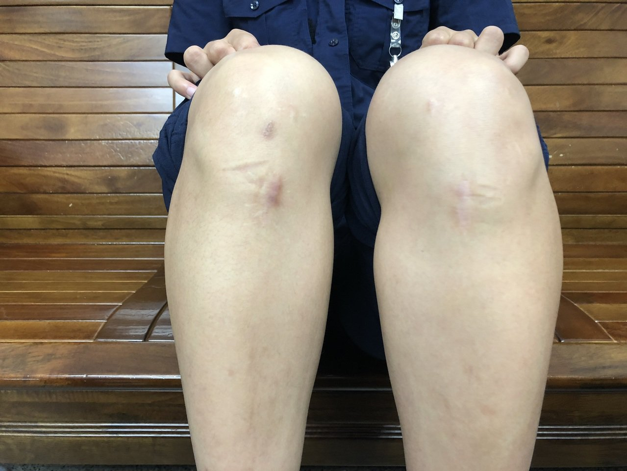 台中市第四警分局南屯所女警王翊馨熱愛跆拳道,左右腳的十字韌帶都斷過,膝蓋都有開刀...