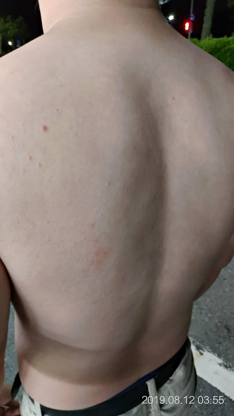 被害男子遭警方壓制踹打,背部留下紅腫傷痕。圖/被害當事人提供